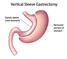 sleeve gastrectomy | university of illinois hospital & health, Skeleton