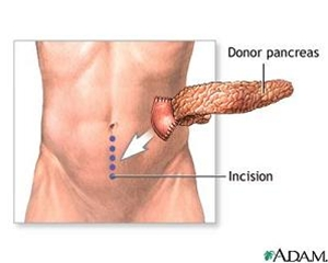 where is your pancreas located diagram | periodic & diagrams science, Cephalic Vein