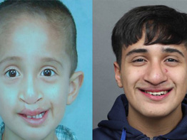 Fabian's Journey: WGN Follows Teen Through Final Craniofacial Procedures
